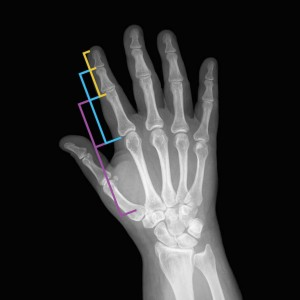 Nature's intelligence and the ability to learn are reflected in the structure of the human hand. The continuous geometrical proportion between the phalanges is the famous Golden Section or Phi ratio, which allows the hand to open and close in the most elegant way, by integrating the part with the whole.